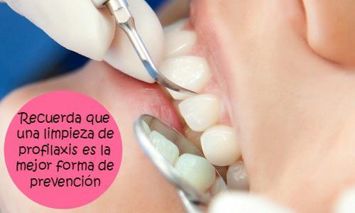 Resultado de imagen para aparatos ultrasonidos dentales