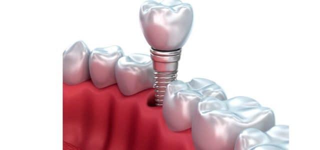 La funda de un implante