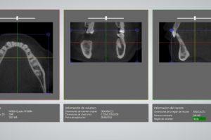 analisis tac dental