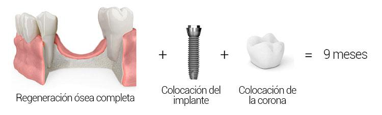 Colocación de implantes con regeneración ósea completa