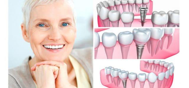 Fases de una prótesis dental