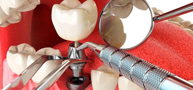 Colocación de un implante dental