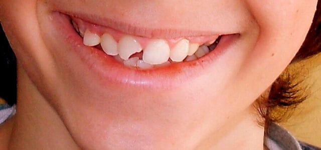 Se me ha roto un diente