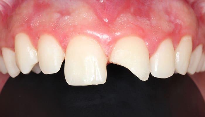 Rotura de diente (Antes)