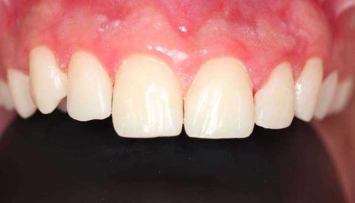 Rotura de diente (Después)
