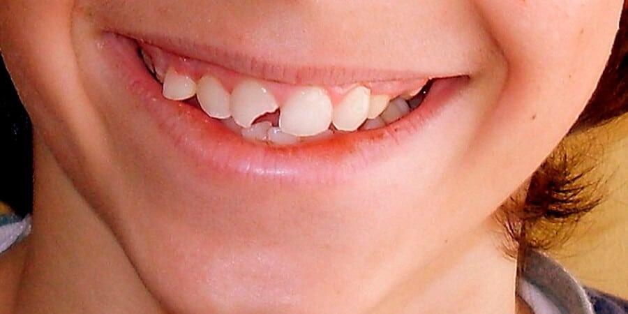 como tapar un diente picado