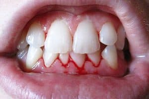 Hemorragia gingival