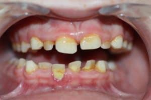 Manchas por sarro en los dientes de leche