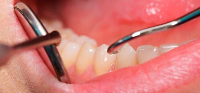 Sensibilidad en un diente