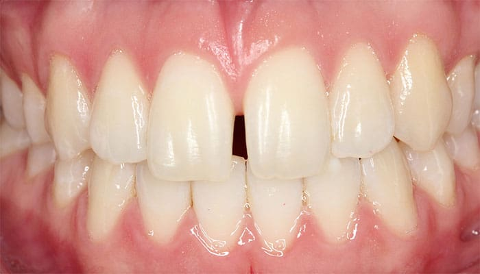 Separación de dientes (Antes)