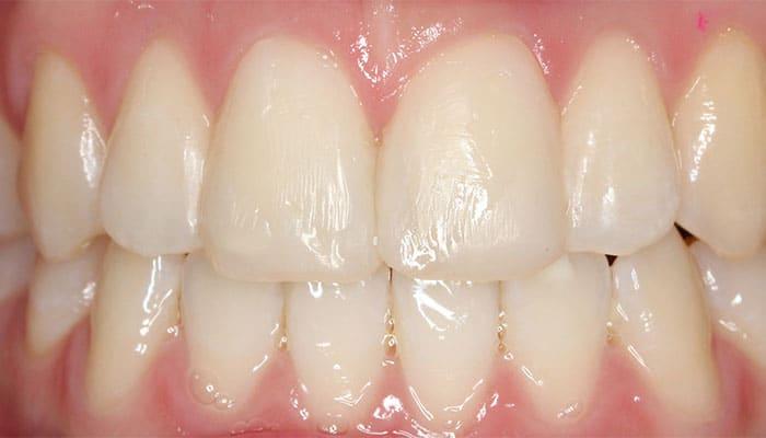 5 motivos por los que ponerte carillas dentales ferrus bratos - Separacion de bienes despues de casados ...