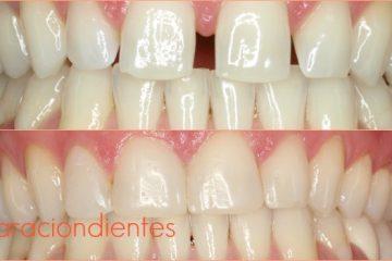separacion dientes despues ortodoncia