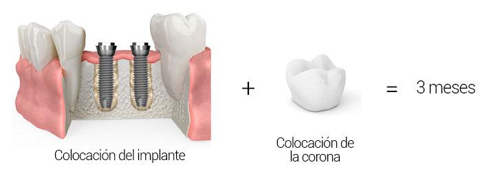 Implante sin regeneración ósea