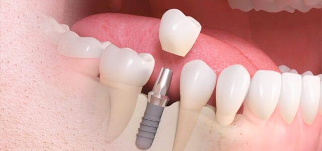 Pasos para colocar implantes