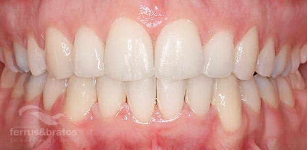 Caso de éxito de ortodoncia con brackets Zafiro