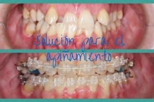 ortodoncia apiñamiento