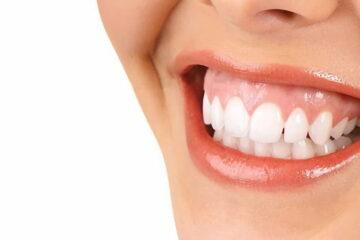 Cómo arreglar la sonrisa gingival