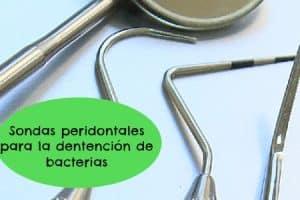sonda periodontal florida