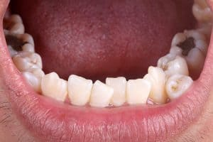 Sonrisa con dientes supernumerarios