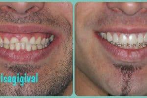 sonrisa gingival soluciones