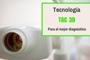 Tac dental implantes