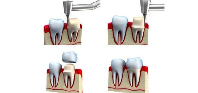 Proceso de tallado dental