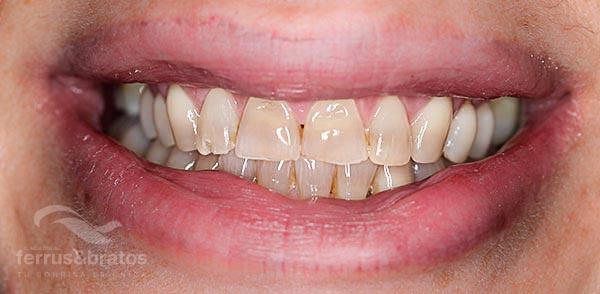 Caso de éxito con blanqueamiento dental