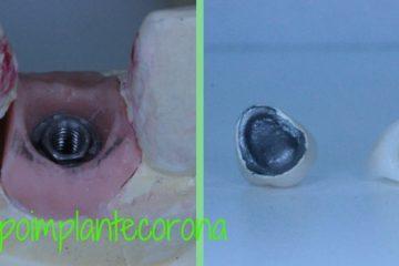 implantes dentales corona de zirconio