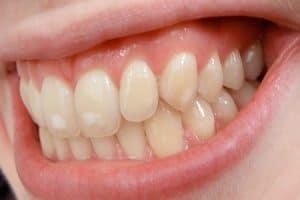 Manchas en los dientes por flúor
