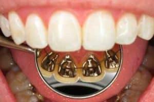 Método de ortodoncia lingual