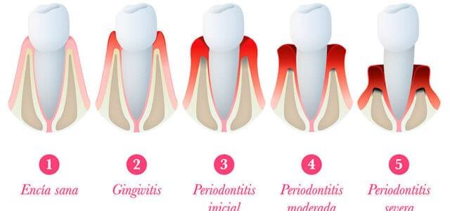 Evolución de la gingivitis