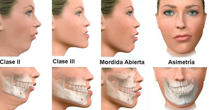 Tipos de deformidades en dientes y cara