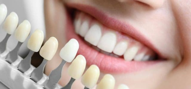 Cada persona tiene su propio color dental