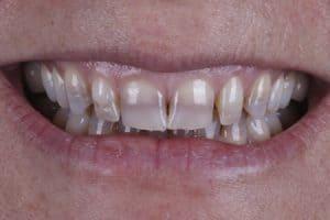 Manchas en dientes por tetraciclinas
