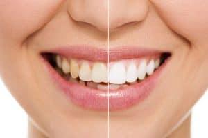 Blanqueamiento dental y carillas