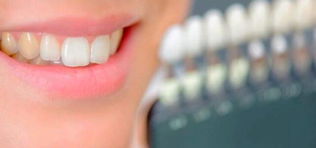 diabetes decoloración de los dientes