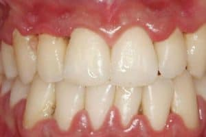Inflamación gingival y enrojecimiento