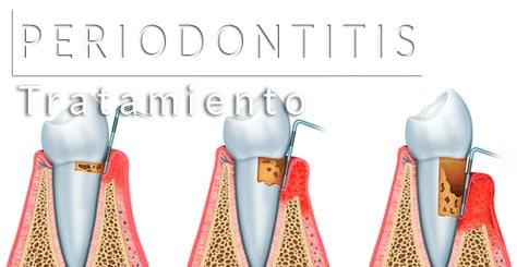 tratamiento de periodontitis