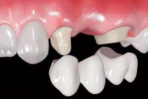 Qué es un puente dental