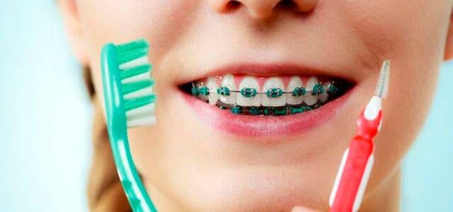Ortodoncia y embarazo
