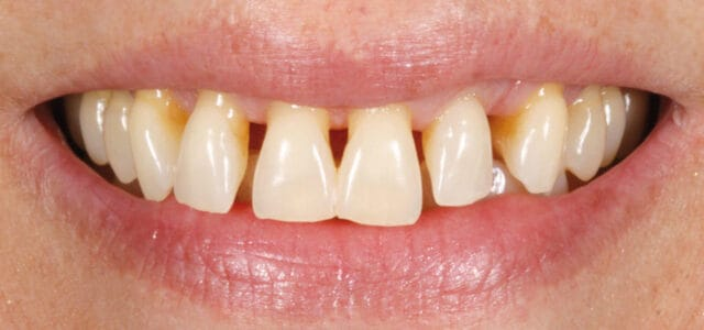 Triángulos negros por periodontitis