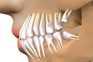 Ubicación de cordales al final de la boca