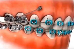 Microimplantes en un tratamiento de ortodoncia