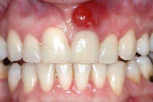 Ir al dentista por infección bucodental