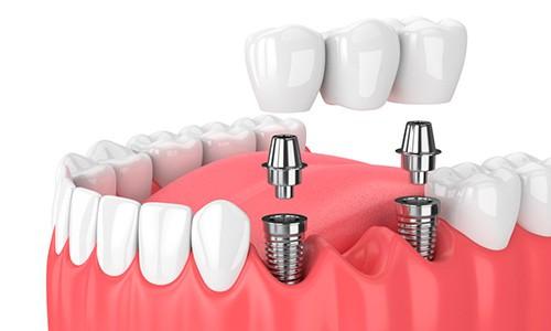 implante dental parado precio mexico